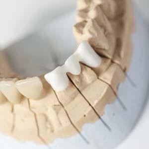 modello dentale in gesso con tre denti bianchi