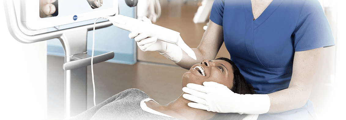 ITero Intraoral Scanner in Columbia MD - Dentist