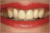 Before Teeth Whitening Treatment Photo in Columbia MD