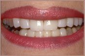 After Dental Veneers Treatment Photo in Columbia MD