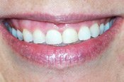 Before Dental Veneers Treatment Picture in Columbia MD