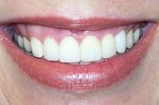After Dental Veneers Treatment Picture in Columbia MD