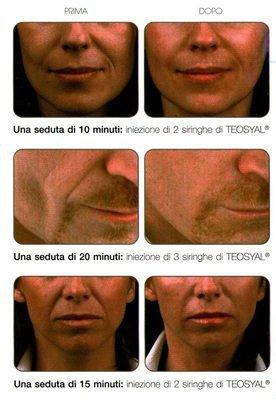 foto del prima e dopo l'iniezione di Teosyal