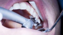 detartrasi protesi dentarie odontostomatologia