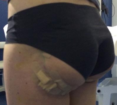 Elasticum, dopo intervento