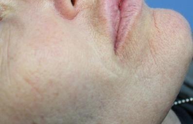 filler nasogeniene