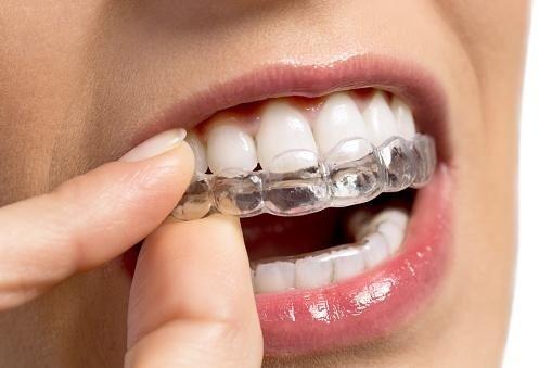 bite per i denti