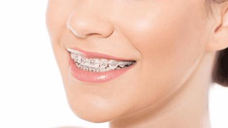 donna con apparecchio ortodontico sorridoe
