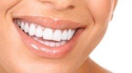 apparecchi odontoiatrici invisibili