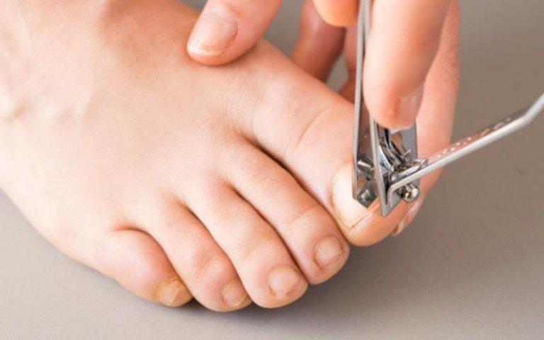 taglio unghie