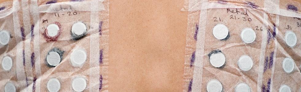 Cura malattie allergiche cutanee