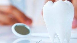 servizi dentistici, implantologia, conservativa