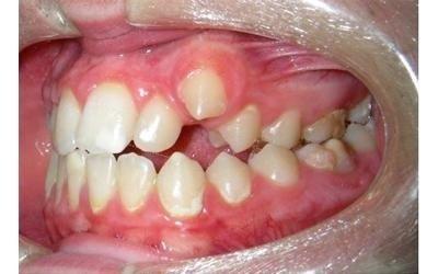 ortodonzia prima dell