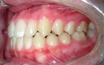 ortodonzia risultato finale