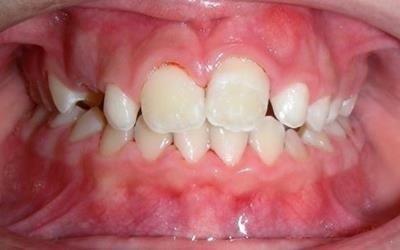 ortodonzia dopo intervento