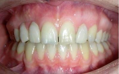 specialisti ortodonzia Bisceglie