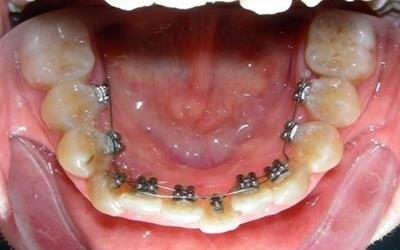 ortodonzia durante intervento