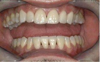 faccette ortodonzia