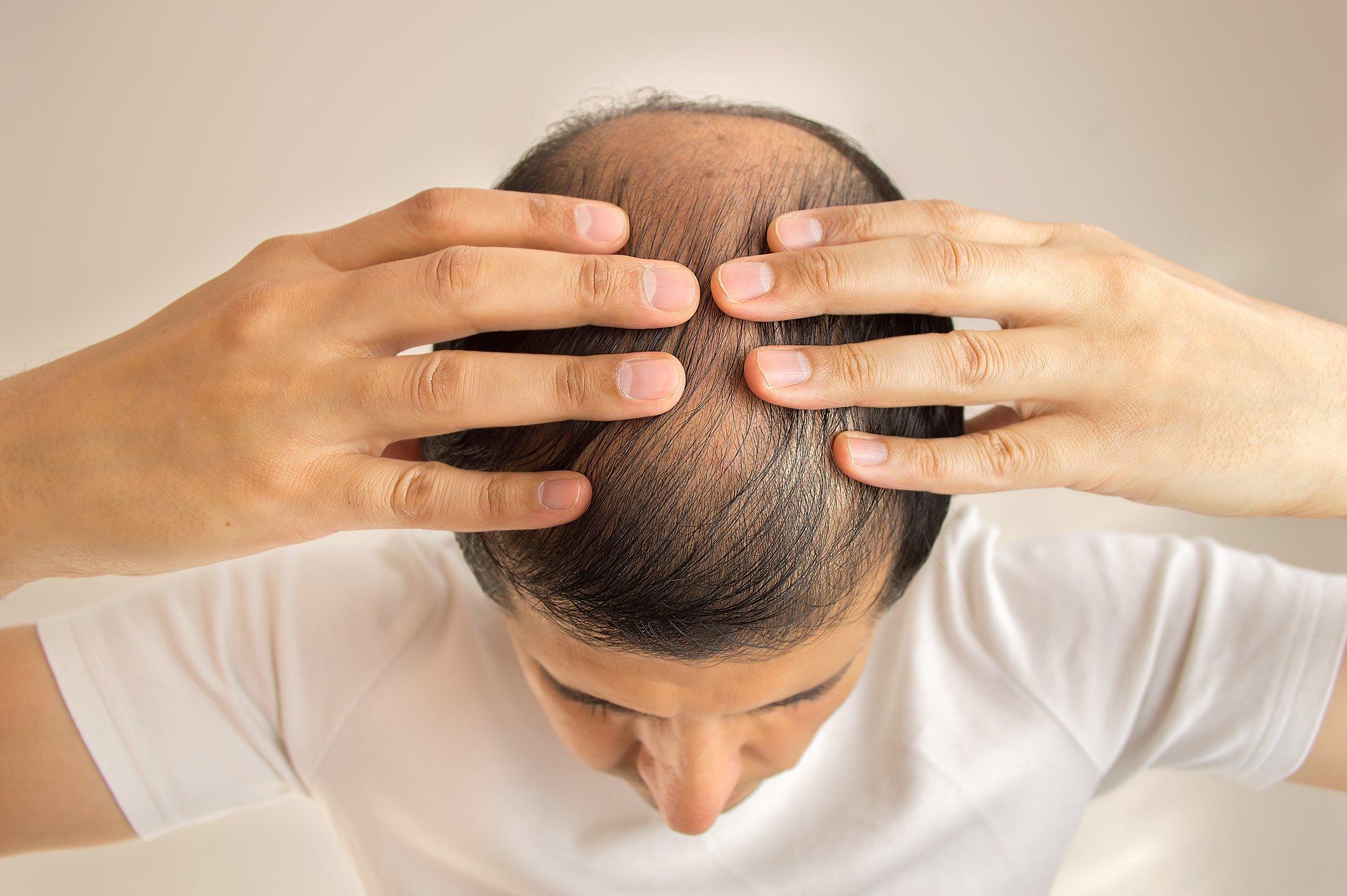 Hair Restoration | Preventive Medicine