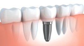 impianto dentale in 3d, vite dentale, denti in linea