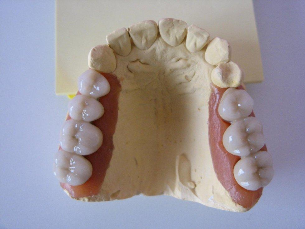 Protesi fissa in ceramica