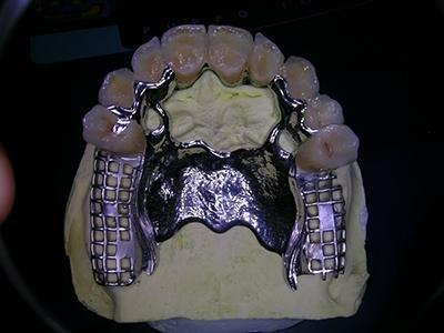 Protesi scheletrata