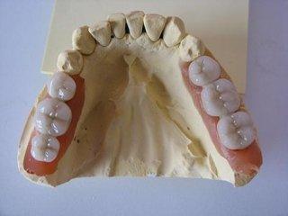 Oro Ceramica frontale