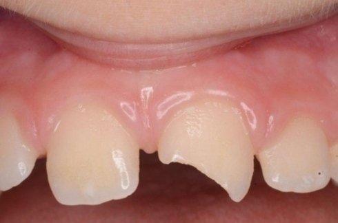 Ricostruzione diretta in composito dente traumatizzato (prima)