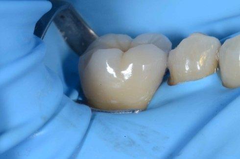 Esempio di ripristino elemento dentale tramite corona in ceramica-Fase 2