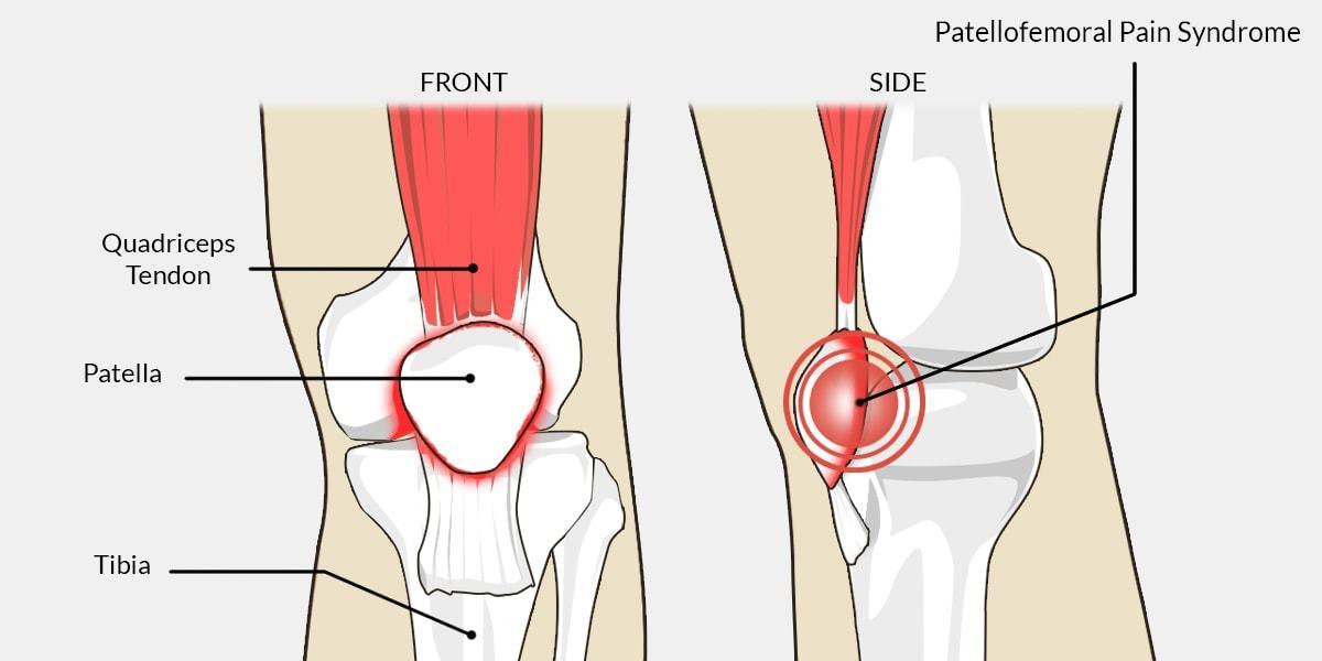 PATELLOFEMORAL PAIN SYNDROME (PFPS)