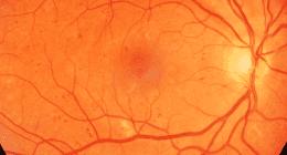 retinopatia diabetica come appare osservando il fondo oculare