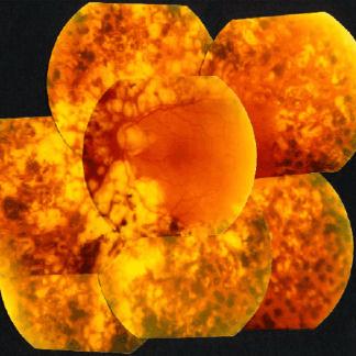 Retinopatia diabetica trattata con argon laser. Si noti l