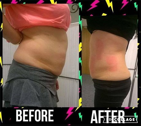 before and after fat reduction