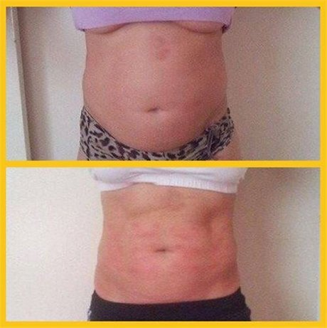 stomach fat reduction