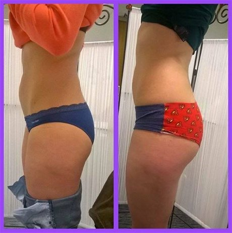 thigh fat reduction