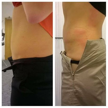 abdominal fat reduction