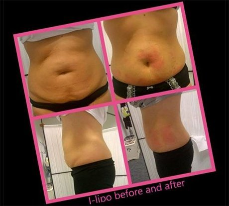 before and after stomach fat reduction