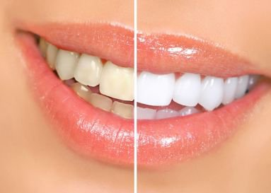 dental vision teeth whitening