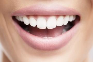 estetica dentale pinerolo