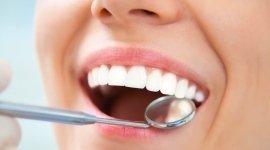 protesi su impianti, assistenza dentistica, odontotecnico