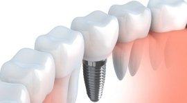 assistenza dentistica, fornitura protesi, protesi mediche