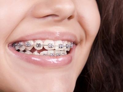 dentista infantile