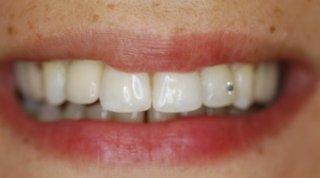 dopo Ortodonzia e Protesi