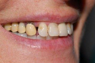 ponte su denti naturali antiestetico