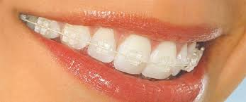 Risultati immagini per apparecchio ortodontico