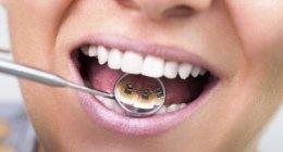 implantologia, trattamenti implantari, ortodonzia
