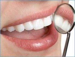 pulizia cavo orale