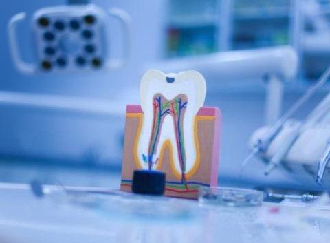 dentista, studio dentistico, pulizia denti, implantologia dentale