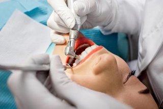 sbiancamento dentale, ortodonzia