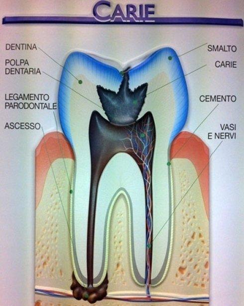 Quando si soffre di carie dentali.